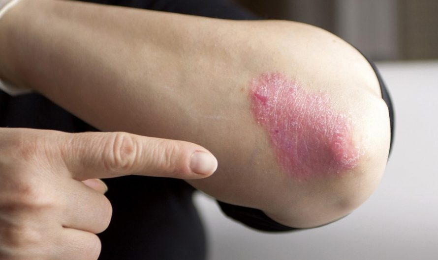 Introduction to psoriasis